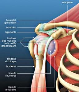 tendinopathie-1