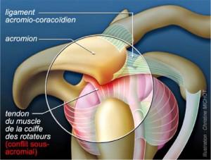 tendinopathie-2