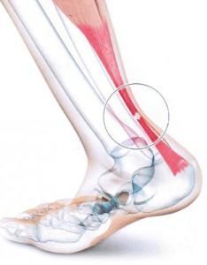 diagnostic-tendon-achille-anatomie