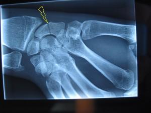 fracture tiers moyen du scaphoïde